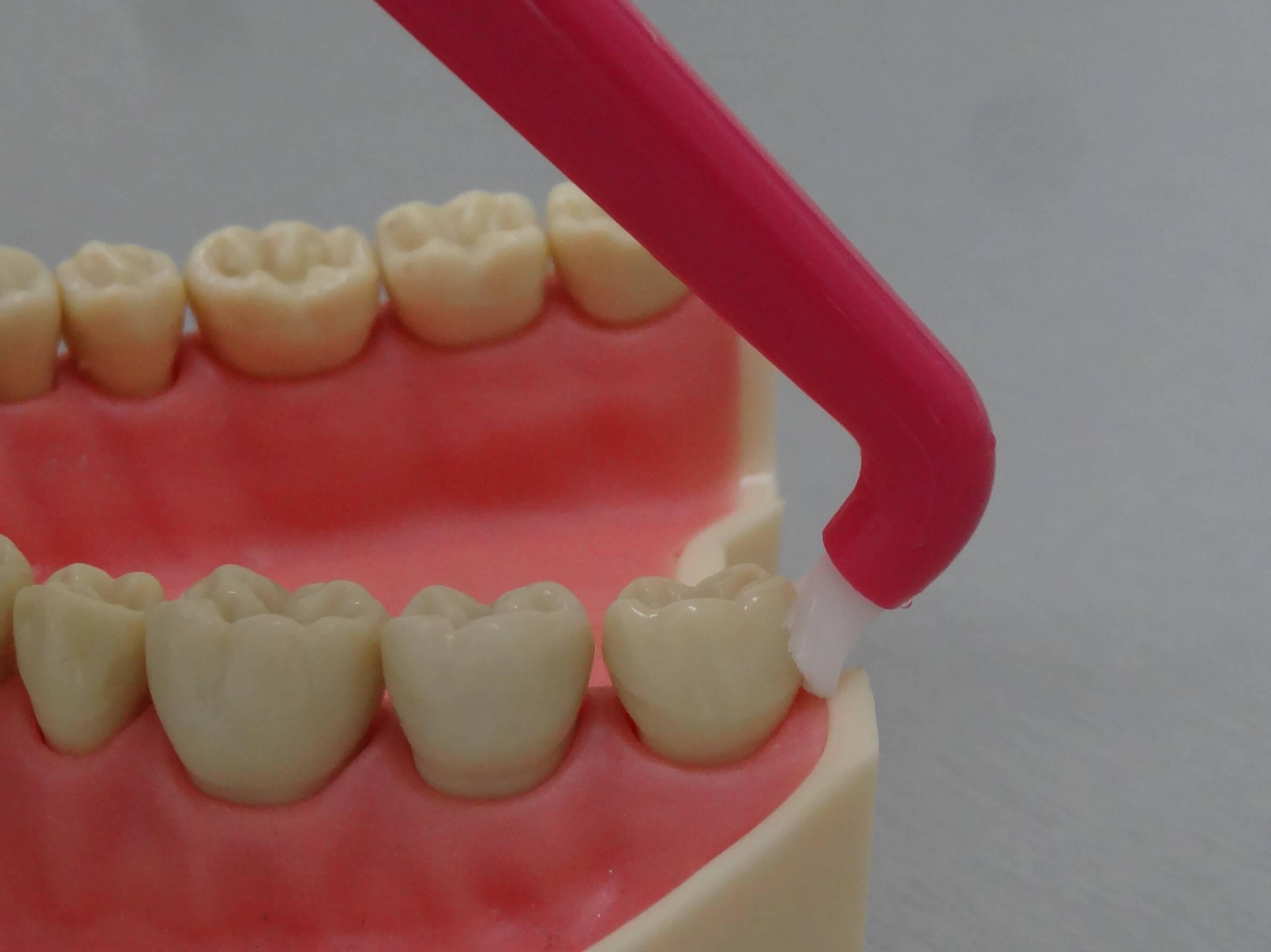 4 Jednosvazkový kartáček-čištění zadní strany posledního zubu