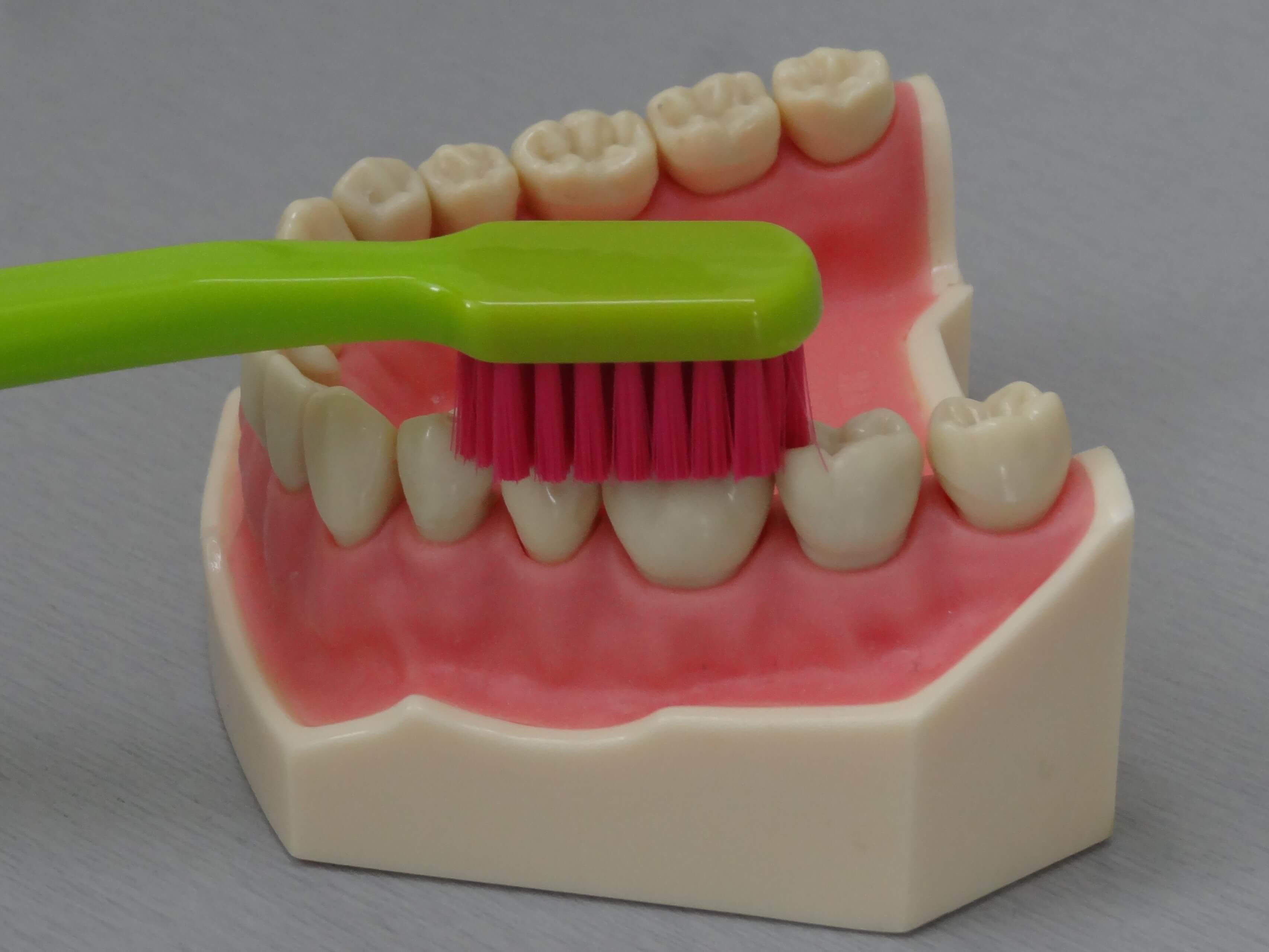 5 Klasický kartářek-čištění žvýkací plochy